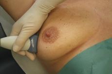 Klassifikation Neue TNM-Klassifikation bei Brustkrebs